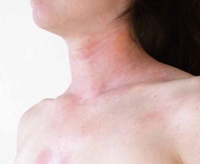 4 Ciri Ciri Alergi Lulur yang Tampak Pada Kulit