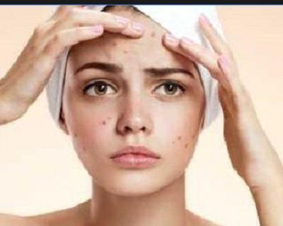 7 Cara Menghilangkan Flek Hitam Di Wajah Yang Membandel Dengan Madu