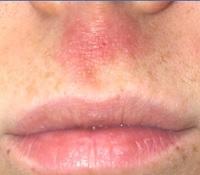 5 Efek Samping Menumbuhkan Kumis Dengan Odol yang Merusak Kulit